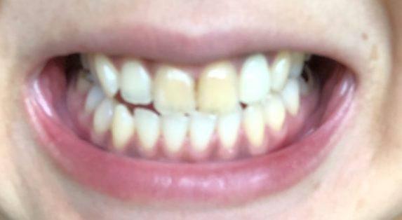電動歯ブラシ 一ヶ月半 使用